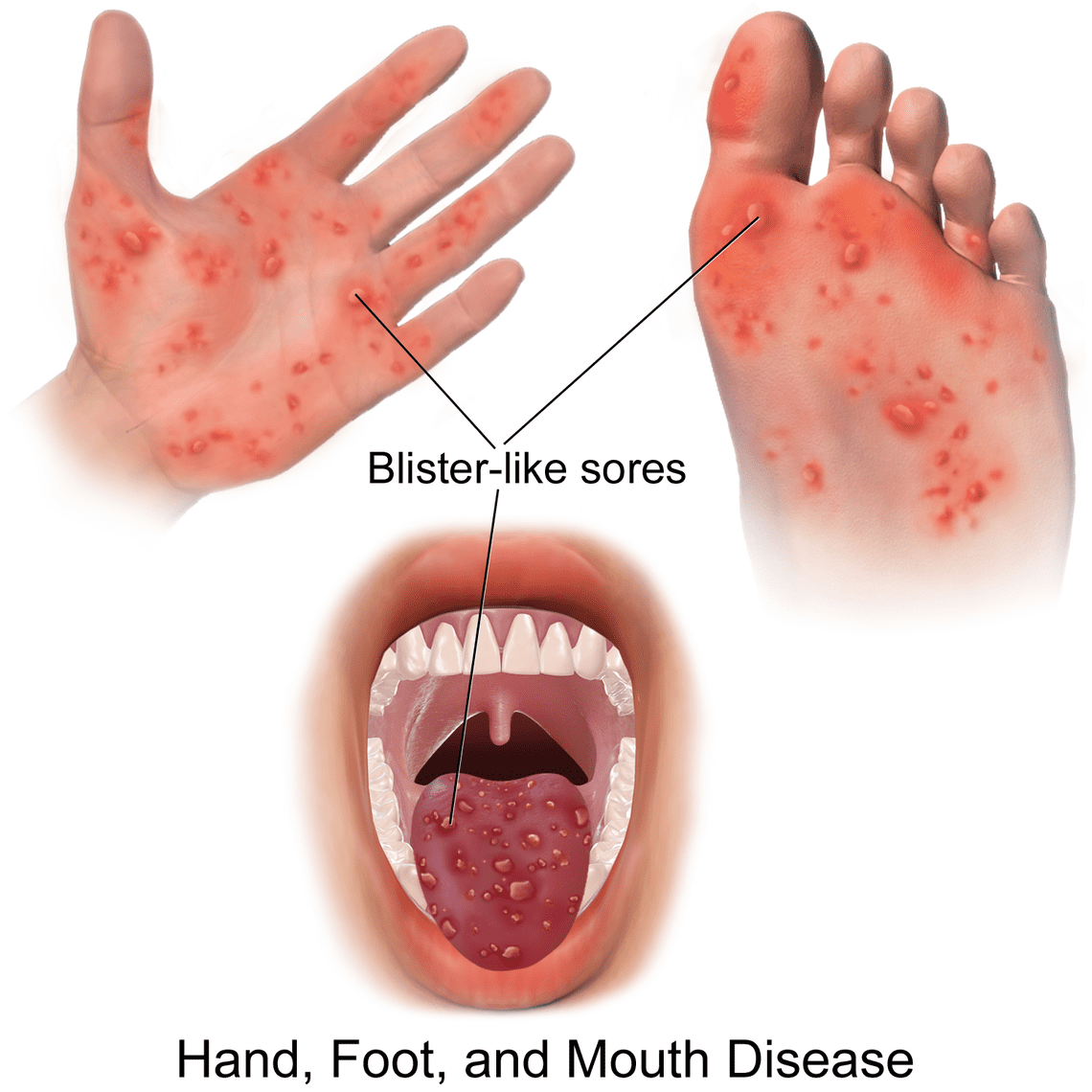 Hand foot & mouth disease